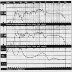 Sintra, Hi-Fi Choice Review, Jan 91 graphs